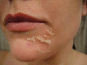 Лучшие домашние средства для снятия шелушения кожи