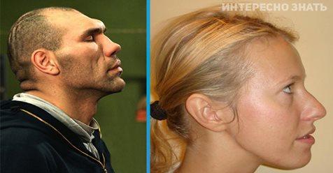 Нос на все лицо: знаменитости с некрасивыми профилями и носами